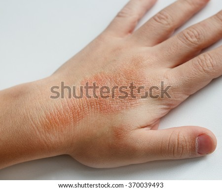 Red spots  on child hands skin covered with moisture cream. The cause is winter cold and wind conditions. Light grey background.