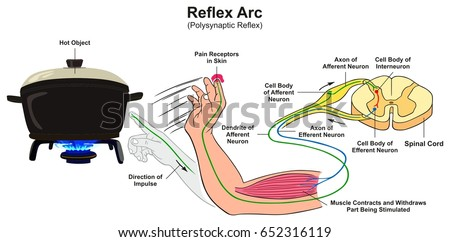 Reflex arc infographic diagram example polysynaptic em ilustrao reflex arc infographic diagram with example of polysynaptic reflex human hand touching hot object pain receptors ccuart Choice Image