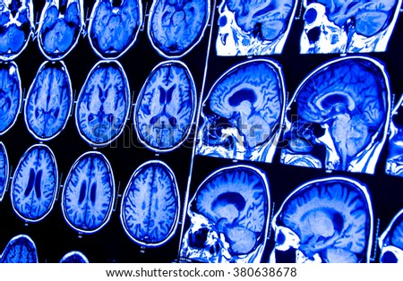 research in medicine. CT scan of the patient. - stock photo