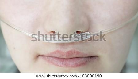 respiratory oxygen nasal catheter to the patient - stock photo