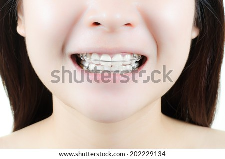 retainer for teeth - Beautiful smiling girl with retainer for teeth - stock photo