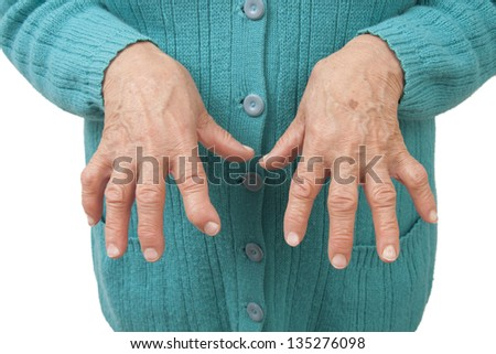 Rheumatoid arthritis hands Isolated on white background - stock photo