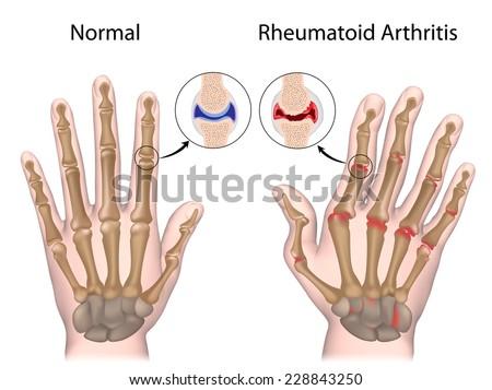 Rheumatoid arthritis of hand - stock photo