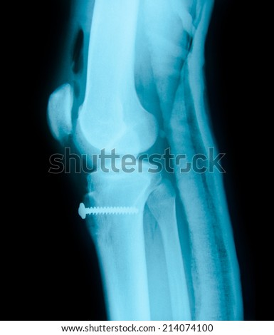 Right knee joint and Medical equipment X-ray photos - stock photo
