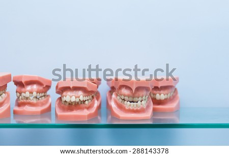 Row of many educational jaw models with wrong occlusion on a blue background on glass shelf in dentist office with copy space - stock photo
