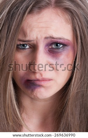 Sad face almost crying of an injured, beaten and bruised woman victim of domestic violence - stock photo