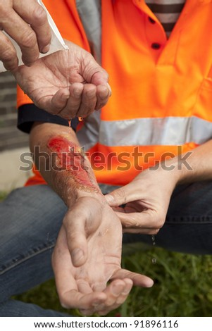 Safety and accident at work. - stock photo