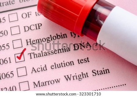 Sample blood in blood tube for Thalassemia DNA test on request form in laboratory.