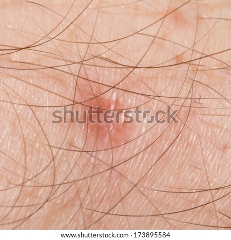 scar from a wound on the skin. macro - stock photo