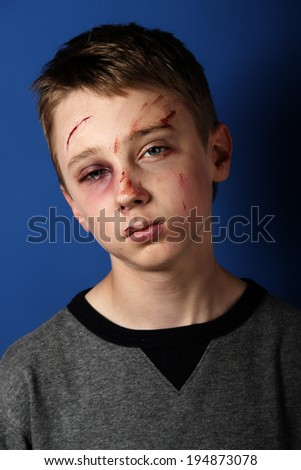 Scarred beaten up kid - stock photo