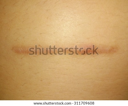 Scars from surgery in the abdominal area. - stock photo