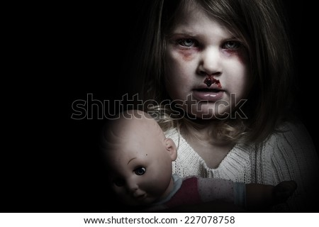Scary bloody girl with her doll - stock photo