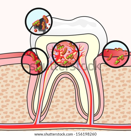 Scheme of tooth section with different damages and germs - stock photo