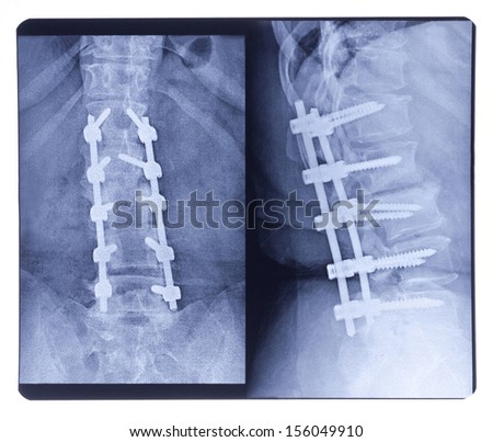 Scoliosis, X-ray on the Background - stock photo