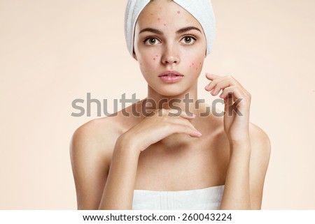 Scowling girl in shock of her acne with a towel on her head. Woman skin care concept / photos of ugly problem skin girl on beige background   - stock photo