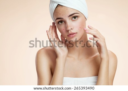 Scowling girl show her acne with a towel on her head. Woman skin care concept / photos of ugly problem skin girl on beige background  - stock photo