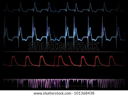 Screen medical monitor. The waves of blood pressure, blood oxygen saturation - stock photo
