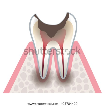 sectional view of tooth decay