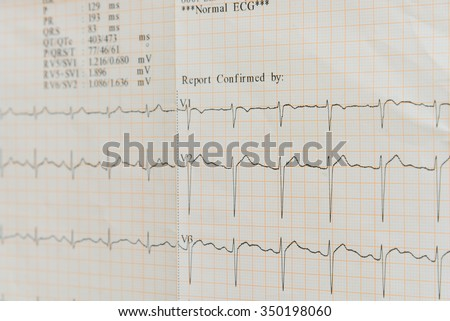 Selective focus of an electrocardiogram (ECG, EKG) report in paper form. Medical and healthcare background - stock photo