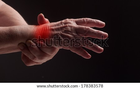 Senior hands. Suffering from pain and rheumatism - stock photo