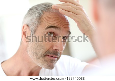 Senior man and hair loss issue - stock photo