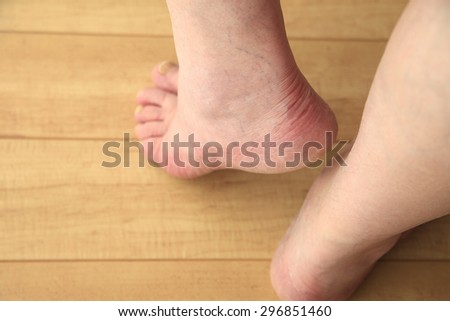 Senior man holds his heel up, copy space included - stock photo