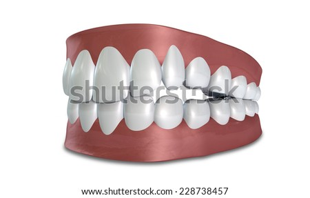 Separated upper and lower sets of human teeth set in gums on an isolated background