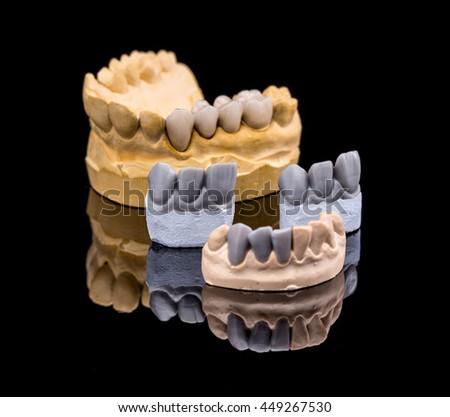 Set of dentures. False teeth on black background - stock photo