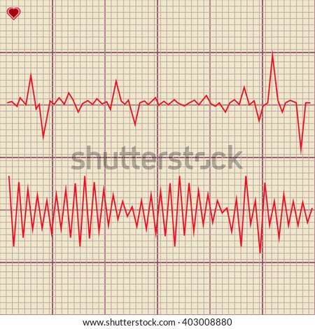 Set of various cardiogram design elements. Cardiogram lines of healthy heart and heart stop 2 - stock photo