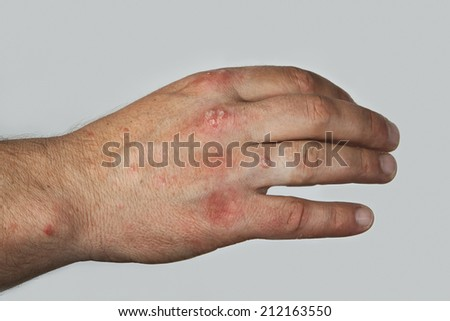 Severe psoriasis on the hand - stock photo