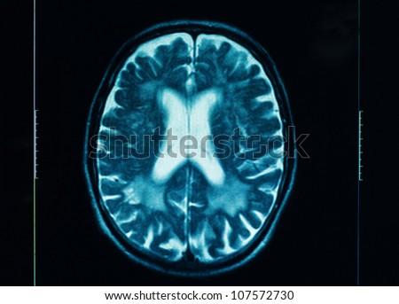 sharp ct scan of the human brain - stock photo