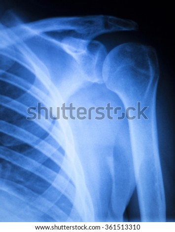 Shoulder injury orthopedics xray scan Trauamtology scanning results. - stock photo
