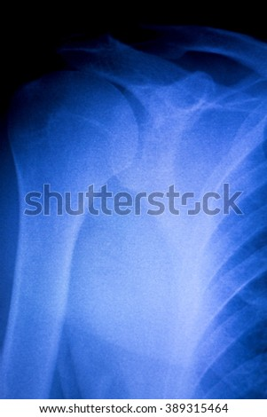 Shoulder joint orthopedics xray scan test reults to diagnose pain and sports injury. - stock photo