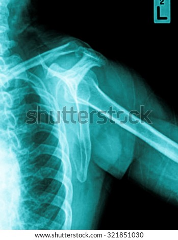shoulder x-rays image - stock photo