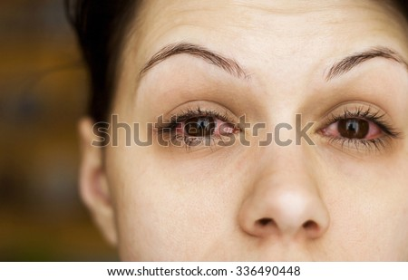 Sick woman's eyes - stock photo