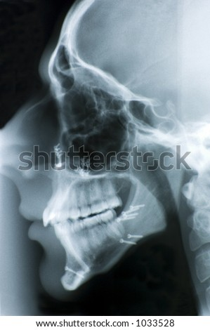 Side view head x-ray showing screws used to reconstruct the jaw bones. - stock photo