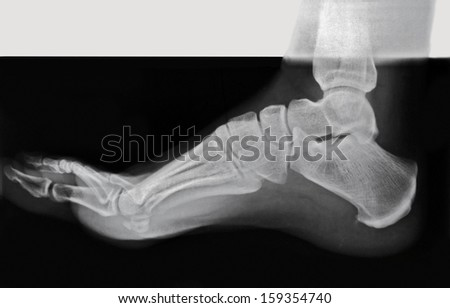 Side view of an adult foot in an x-ray. - stock photo