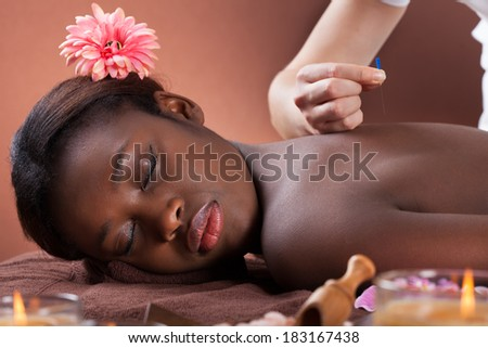 Side view of young woman undergoing acupuncture therapy at beauty salon - stock photo