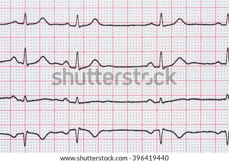 Sinus Heart Rhythm On Electrocardiogram Record Paper Showing Normal P Wave, PR and QT Interval and QRS Complex - stock photo
