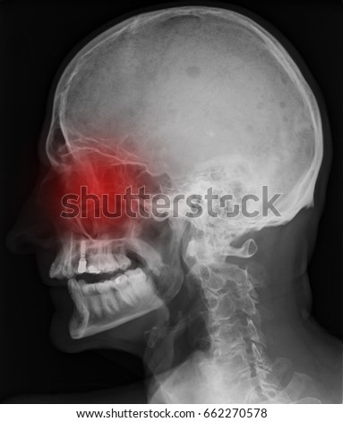 Paranasal Sinuses Stock Images Royalty Free Images
