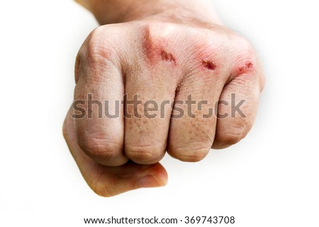 skin abrasion injury on the knuckles of the left hand - stock photo