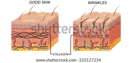 Skin anatomy diagram - younger and older skin.Comparation good skin and skin with wrinkles.  Illustration of skin cross section showing young skin and older skin. - stock photo