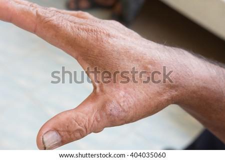 Skin disorder on hand - stock photo