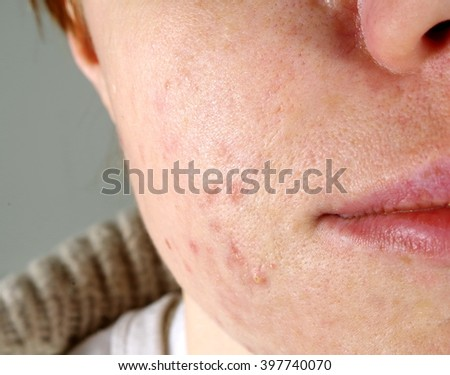 skin with the acne problems - stock photo