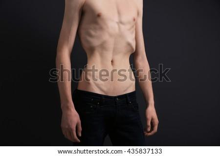 Výsledek obrázku pro anorexia