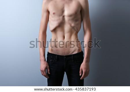 Uit een anorexia man