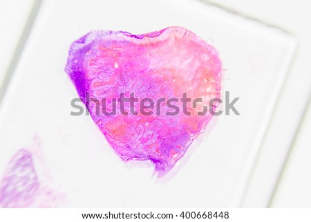 Slide tissue biopsy from Uterus with myoma or adenomyosis for diagnosis in pathology laboratory. - stock photo