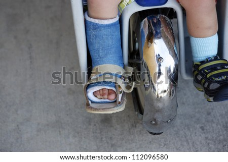 Small child with broken leg in cast
