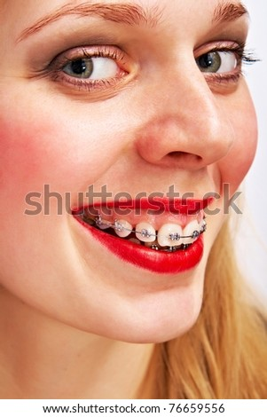 smiling woman with brackets