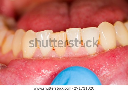 Some healthy teeth of the lower denture. - stock photo